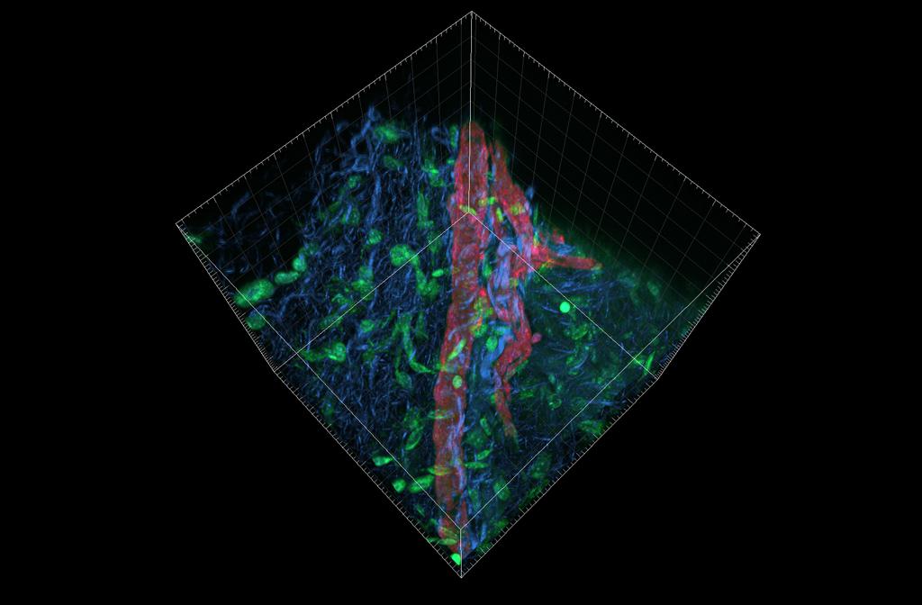 Blood vessel imaging in skin