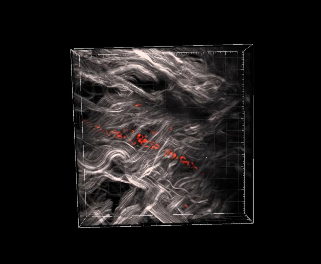 Capillary imaging in skin